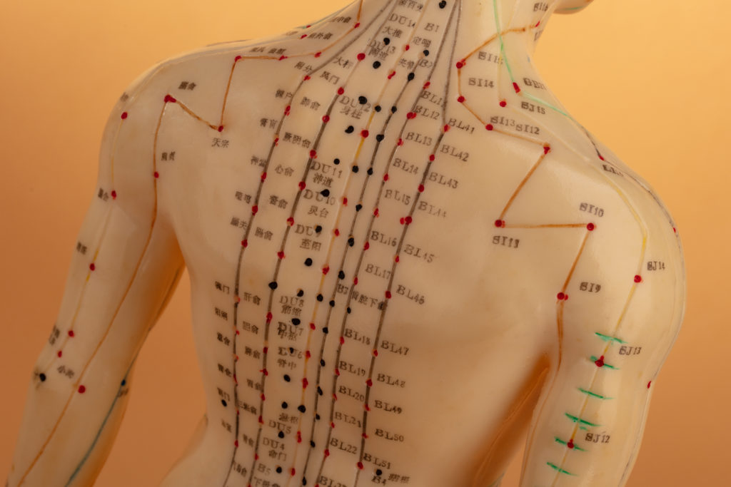 Acupuncture for neck and back